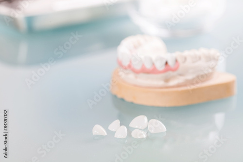 Photo  cast tooth