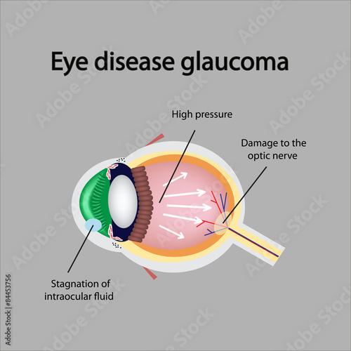 Fotografía  Glaucomatous eye. Violations causing glaucoma