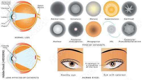 Fényképezés  Eye disease cataract
