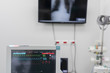 medical monitor in operation room