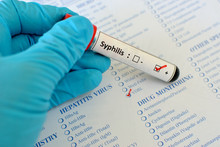 Blood Sample With Syphilis (Tr...