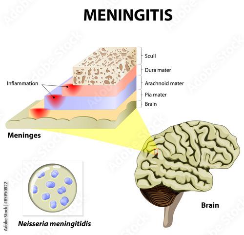 Meningitis Wallpaper Mural