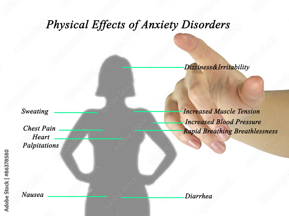 factors affecting the development of anxiety disorders Risk & protective factors  presence of mentors and support for development of skills and interests opportunities for engagement within school and community  resource: evidence-based treatments for anxiety disorders in youth resource: helping kids recover and thrive.