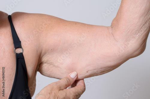 Foto  Ältere Frau zeigt ihren schlaffen Arm