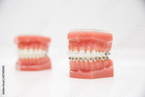 Photo Model of human jaw with wire braces