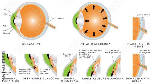 Fotografía  Glaucoma is an eye disease