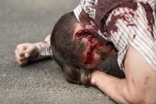 Casualty Of Terrorist Attack