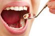 Leinwandbild Motiv Frau beim Zahnarzt mit offenem Mund