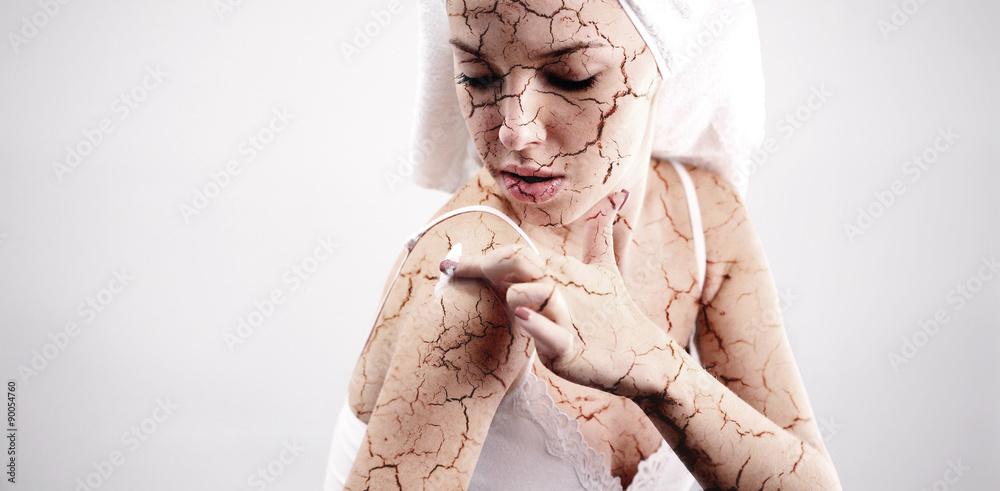 Fototapeta Cracked skin treatment