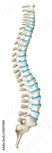 Juliste  Spine diagram showing back pain