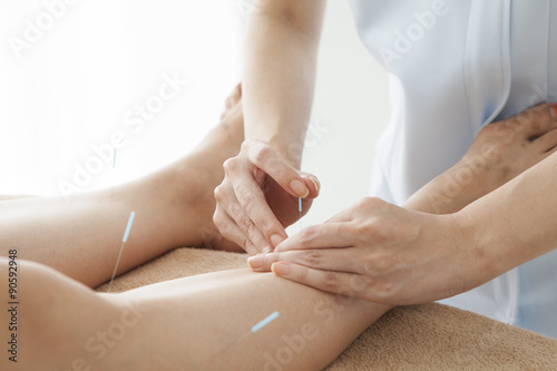 Acupuncturist is treating the legs of women Canvas Print
