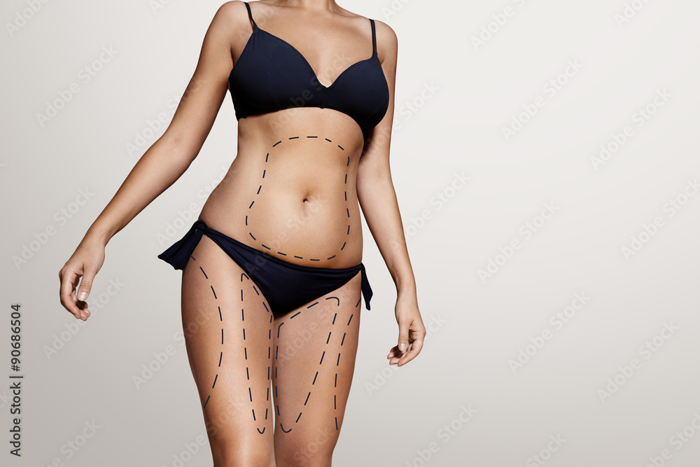 Fototapeta liposuction lines on a woman's body