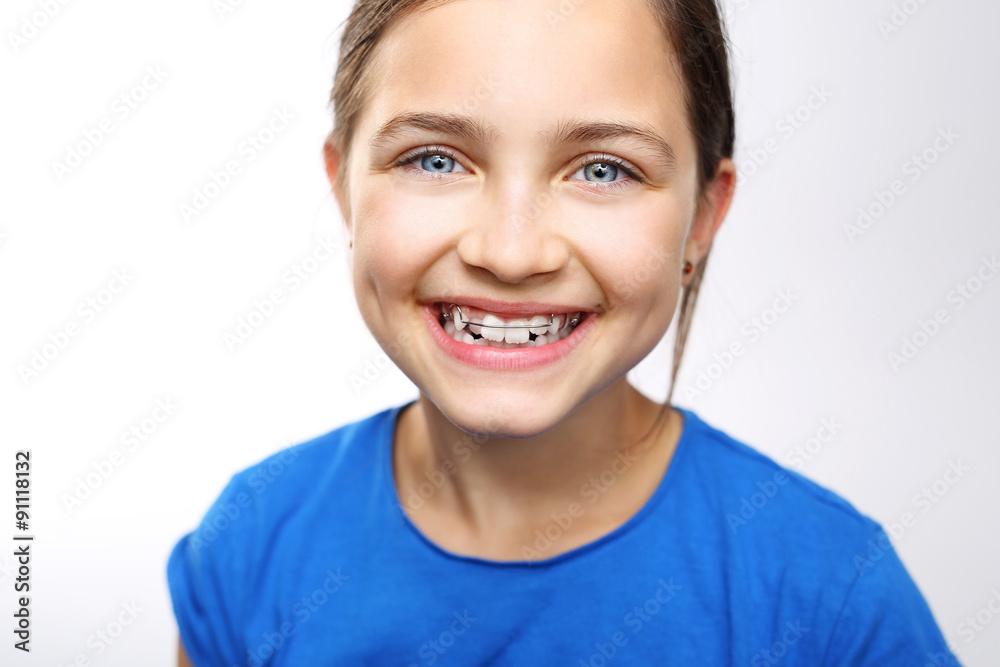 Fototapeta Dziecko w aparaciku ortodontycznym, sposób na proste zęby i piękny uśmiech