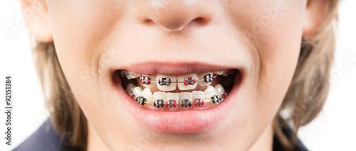 Fotografia  Smile with braces - Sorriso con apparecchio ortodontico
