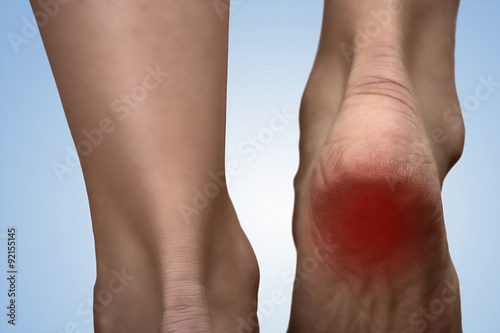 Painful heel with red spot on woman's foot Fototapet