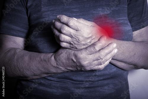 Fotografía  Hand Deformed From Rheumatoid Arthritis