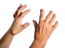 Hand Deformed From Rheumatoid Arthritis