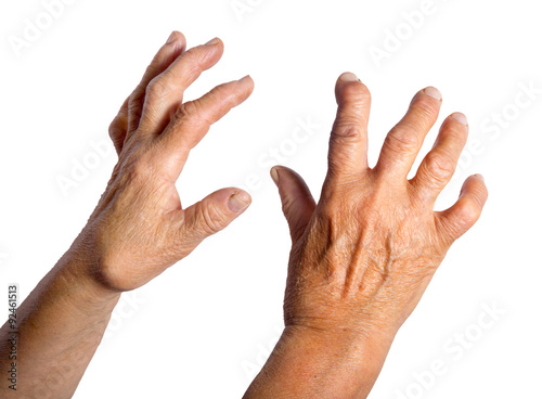 Hand Deformed From Rheumatoid Arthritis Slika na platnu