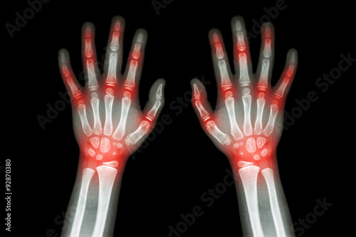 Photo Rheumatoid arthritis , Gout arthritis  ( Film x-ray both hands of child with mul