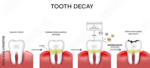 Slika na platnu Tooth decay formation