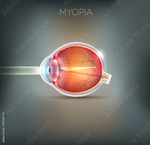 Fotomural  Myopia, vision disorder