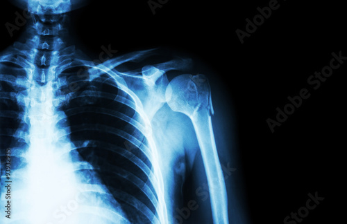 Fracture at neck of humerus ( arm bone ) ( film x-ray left shoulder ...