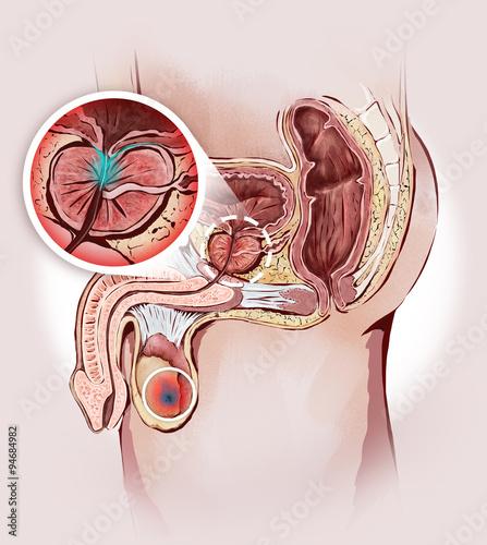 prostata ingrossata e tumore