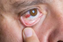 Derrame Ocular O Hiposfagma En...