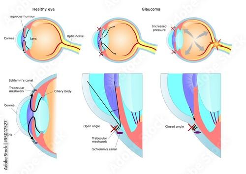 Fotografía malattia oculare: glaucoma