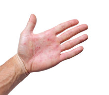 Palm Patient Erythema In Red S...