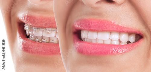 Valokuva  Beautiful teeth after braces treatment