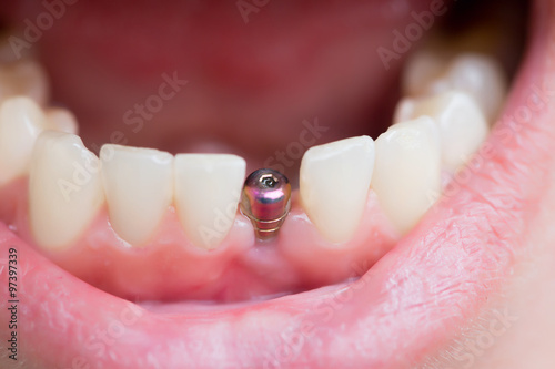 Photo single tooth implant