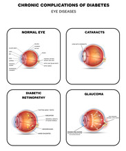 Diabetic Eye Diseases. Diabeti...