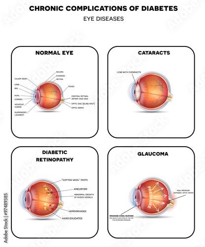 Obraz na plátně Diabetic Eye Diseases