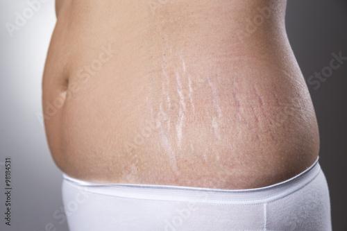 Fotografia, Obraz  Female belly with pregnancy stretch marks closeup