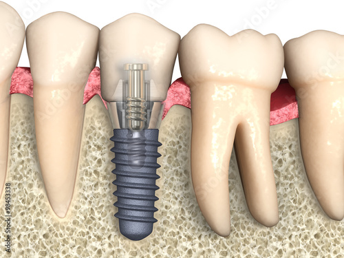 Dental Anatomy Dental Implant With Bone Structure Teeth And Gum