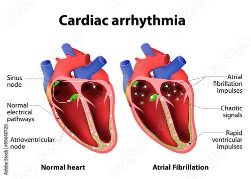 Cardiac arrhythmia Canvas Print