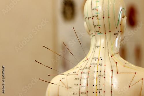 Photo Akupunktur als Alternativmedizin