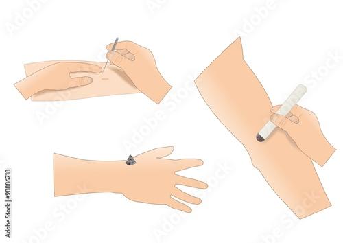 Valokuva  agopuntura, esempio di inserimento aghi e di moxabustione, con sigaro e cono