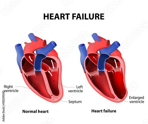 Fotografía  Heart failure