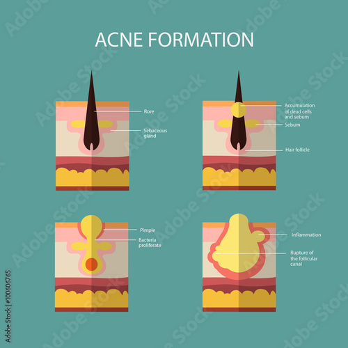 Formation of skin acne or pimple  The sebum in the clogged