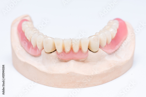 Teleskopprothese telescopic denture buy this stock photo and