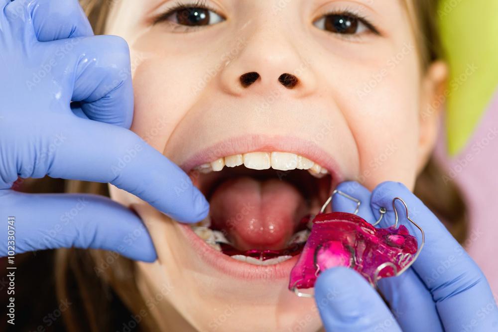 Valokuva  Dental braces for cute little girl