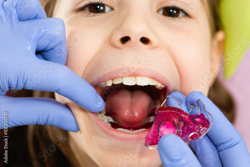 Dental braces for cute little girl плакат