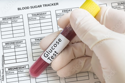 Fotografia, Obraz  Hand holds test tube with blood for Glucose test to recognize diabetes