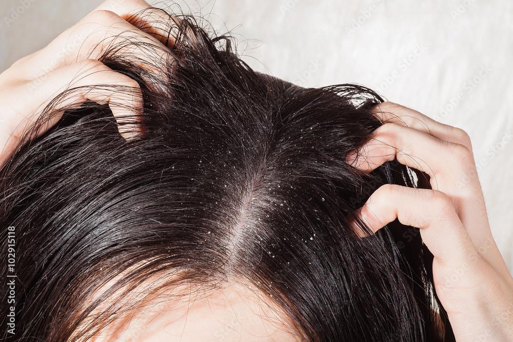 Fototapeta Dander that causes itching scalp