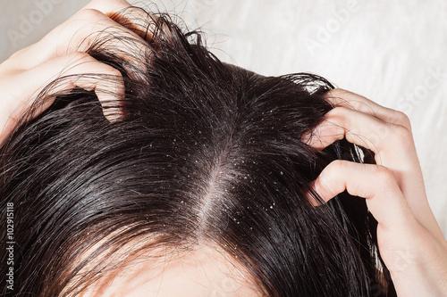 Vászonkép Dander that causes itching scalp