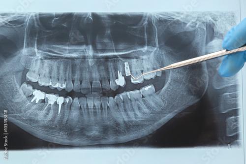 Dental X-ray. Radiography on white background – kaufen Sie dieses ...