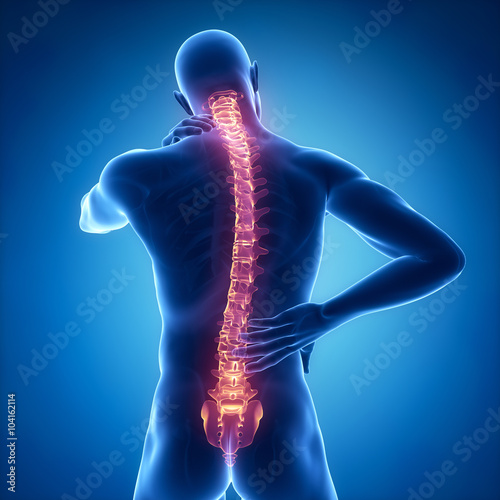 Fotografía Spine injury pain in sacral and cervical region concept