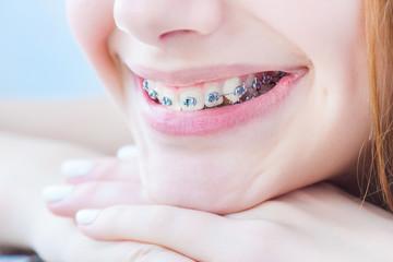 Panel Szklany Podświetlane Do dentysty Teeth with braces.